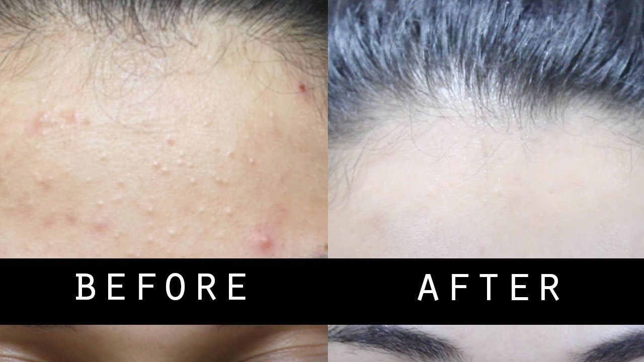 Get Rid Of Small Pimples And Lighten Skin Naturally Fast Skin Bumps On Face Small Pimples Forehead Bumps