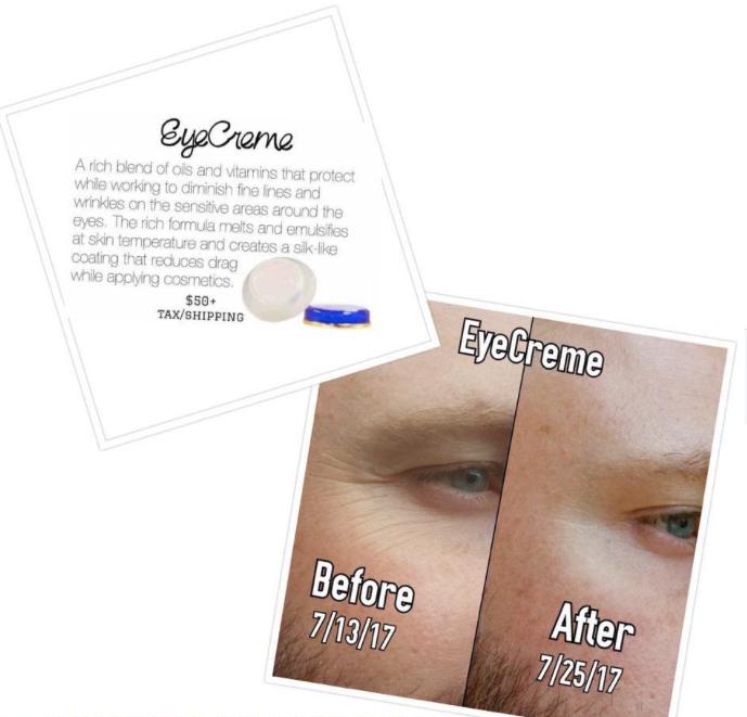 Amazing Benefits Of Senegence Eye Cream Eye Cream Senegence