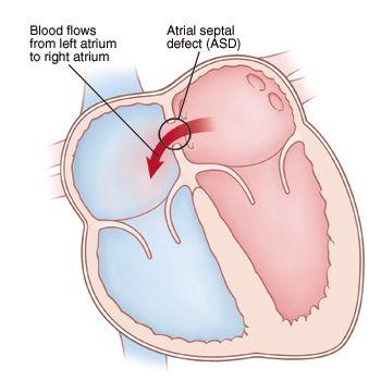 Medicina da trombosi di vene profonde delle estremità più basse