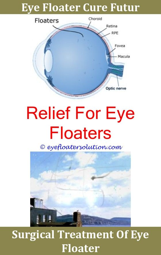 how to get rid of floaters naturally