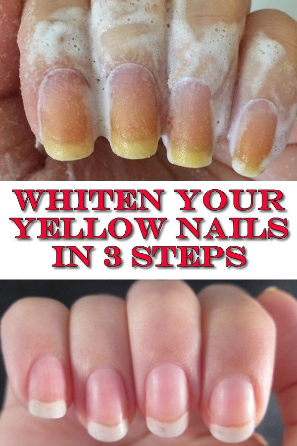 Whiten your yellow nails in 3 steps | Health | Yellow nails ...