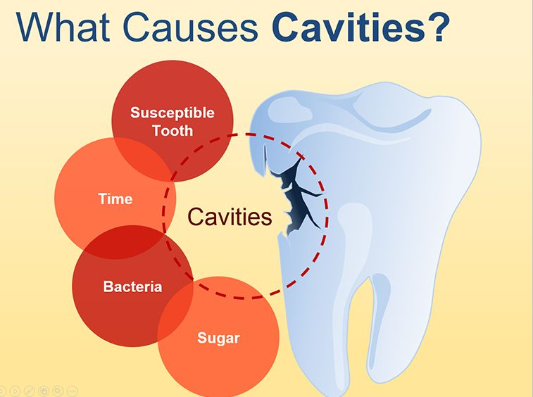 how long does it take to fill a cavity between teeth