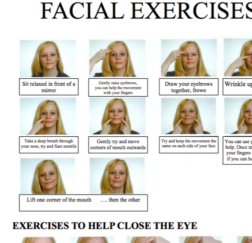 exercises palsy facial nerve