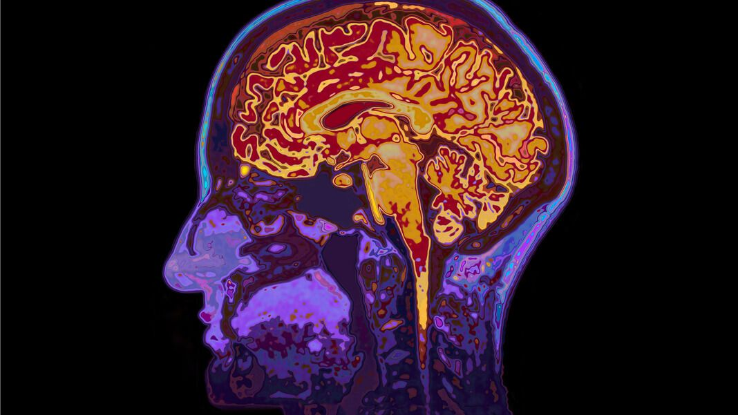 As I Start To Look At The Emerging Trends Of 2017 From The Vantage Of Indiebio Where We See Hundreds Of Biotech Startup Appli Brain Scan Dementia Brain Injury