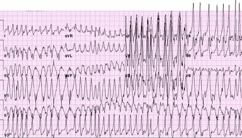 Fibrilación auricular con Wolff-Parkinson-White #ecg #ekg #electrocardiografía #enfermería #cardiología