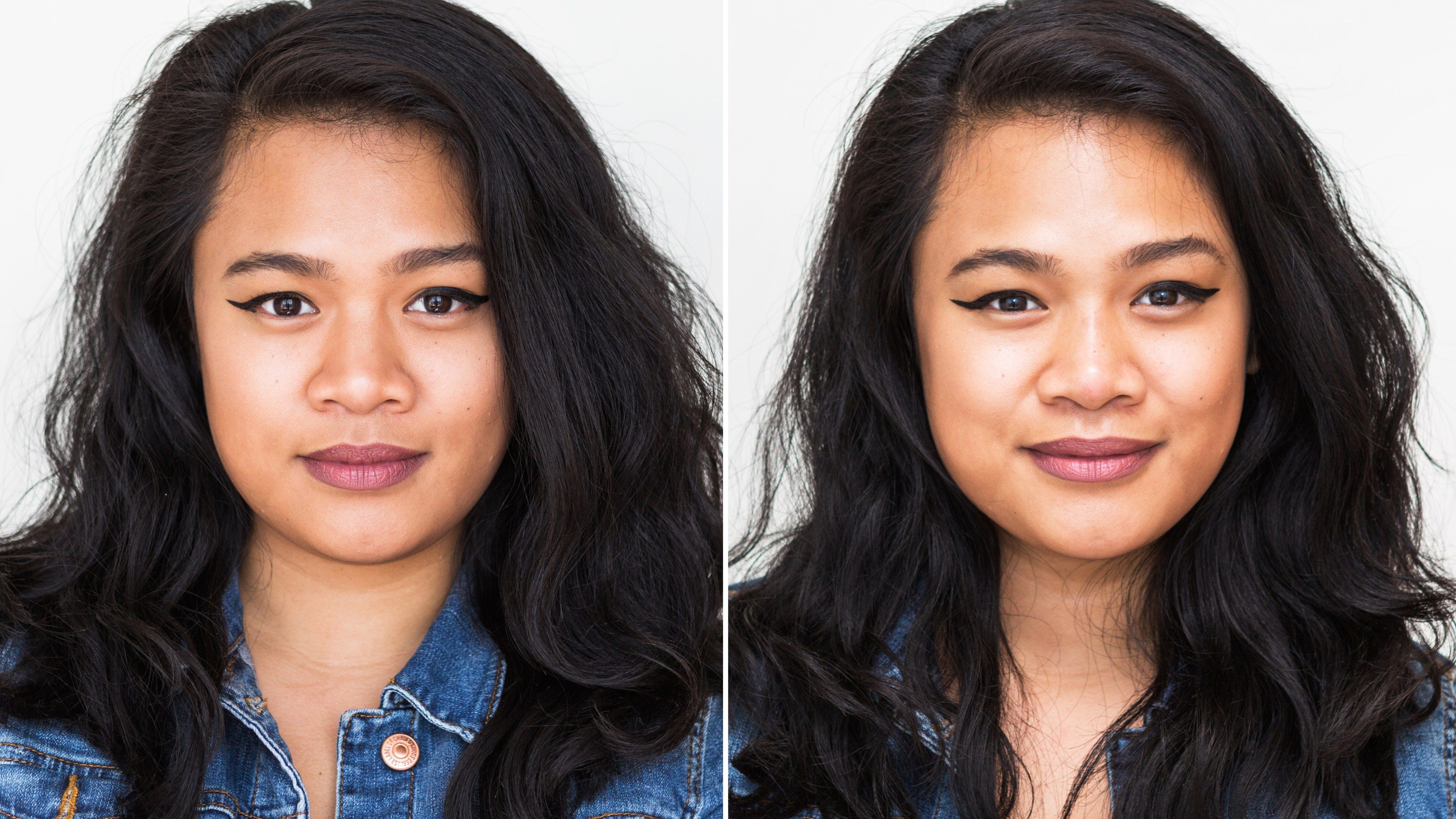 I got a nonsurgical nose job and it changed my face so