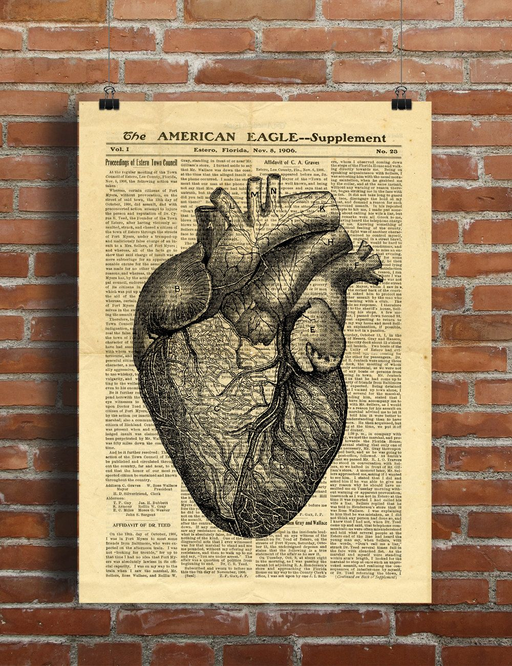 Human Heart Anatomy Science Medicine Vintage Printable Collage Old ...