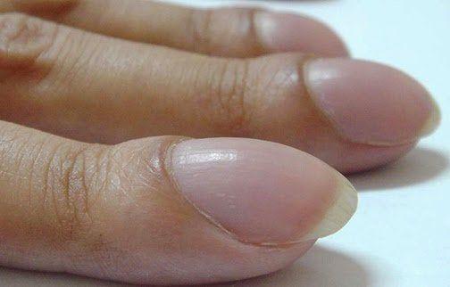 8 Problemas de salud que revelan las uñas según su forma, color y textura