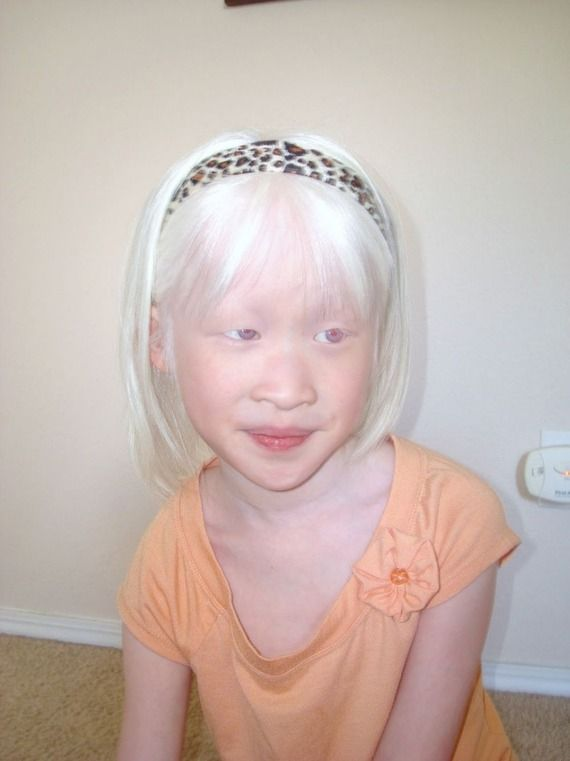 Chinese albino child girl | Beautiful Children Around the ...