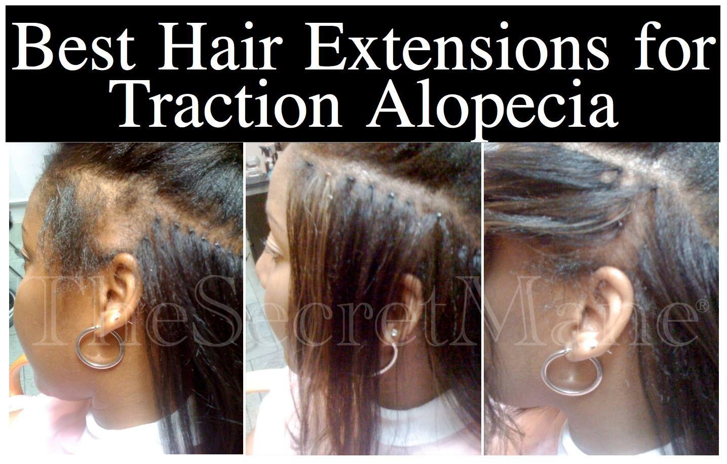 traction # alopecia is a non-scarring alopecia due to