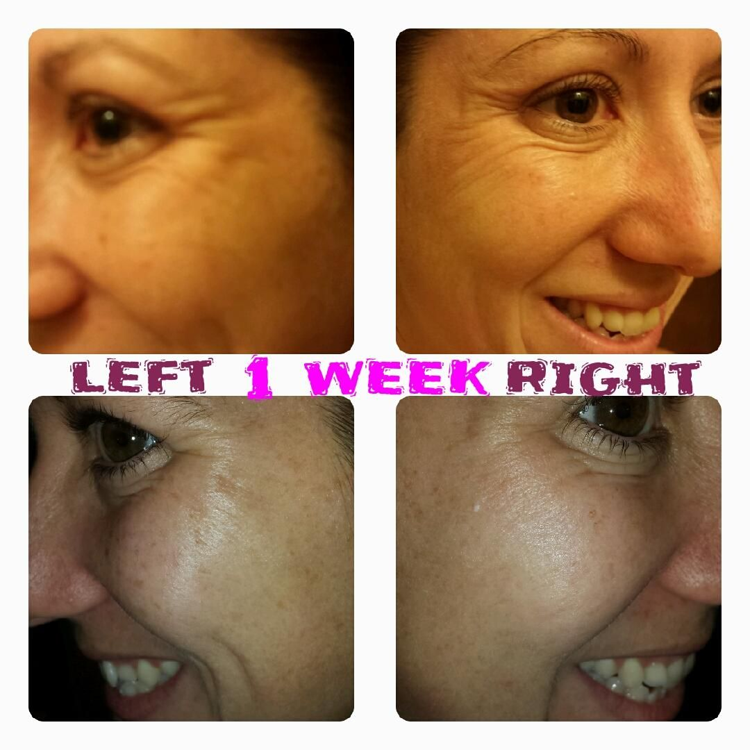 Firming Eye Cream Results Top Before Bottom After Www Marykay
