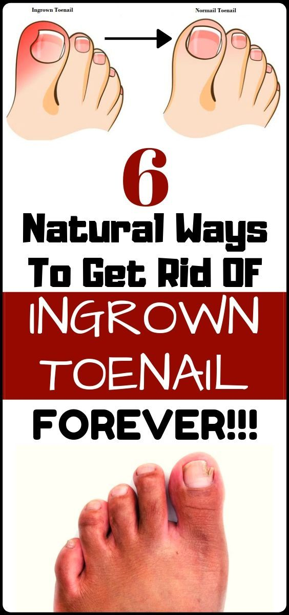 Get rid of ingrown toenail at home with these 6 natural ways... #naturalcures