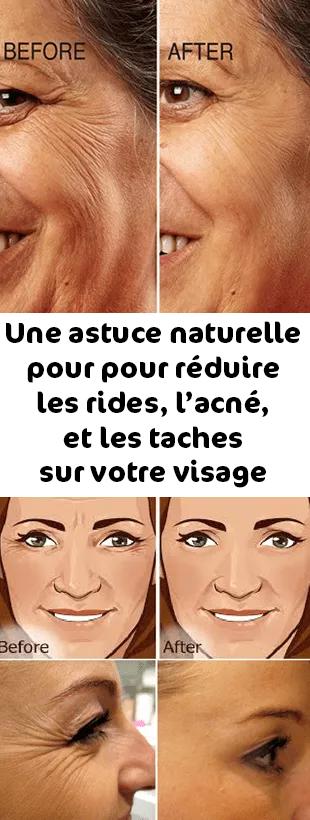 reduire rides visage