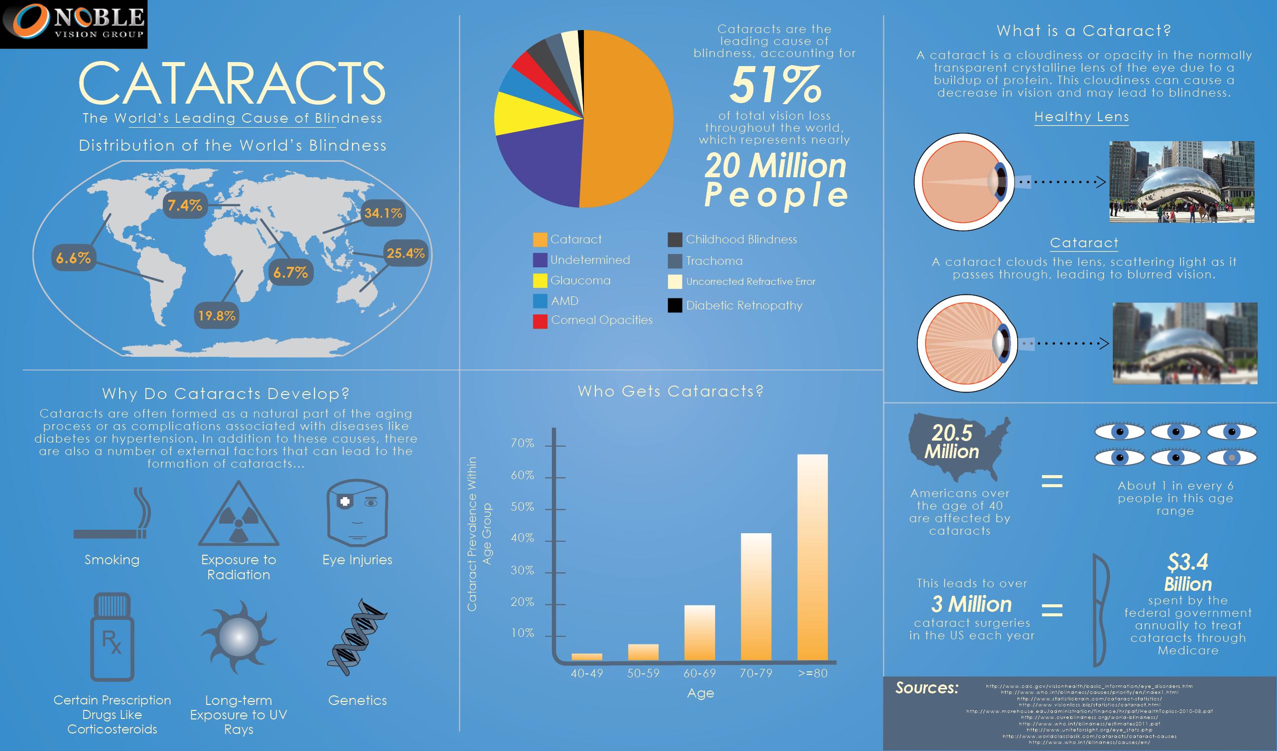 Cataract Infographic Infographic health, Infographic