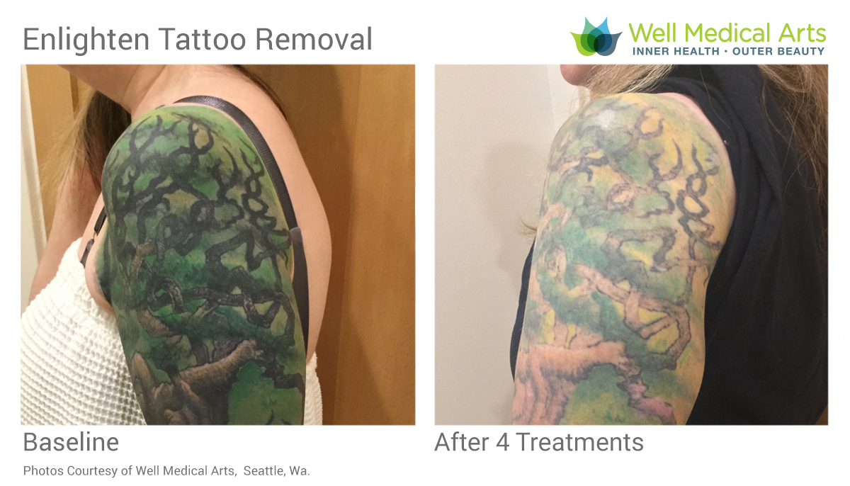 Say goodbye to that unwanted tattoo. See more laser tattoo