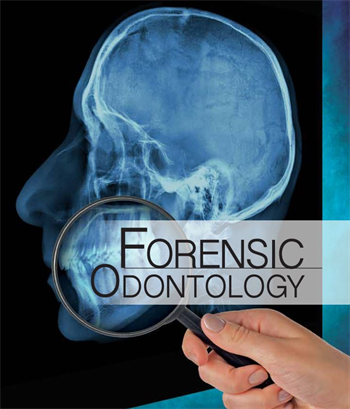 Forensic Odontology Solving Crimes One Tooth At A Time By John Piakis Dds D Abfo Forensics Forensic Science First Tooth