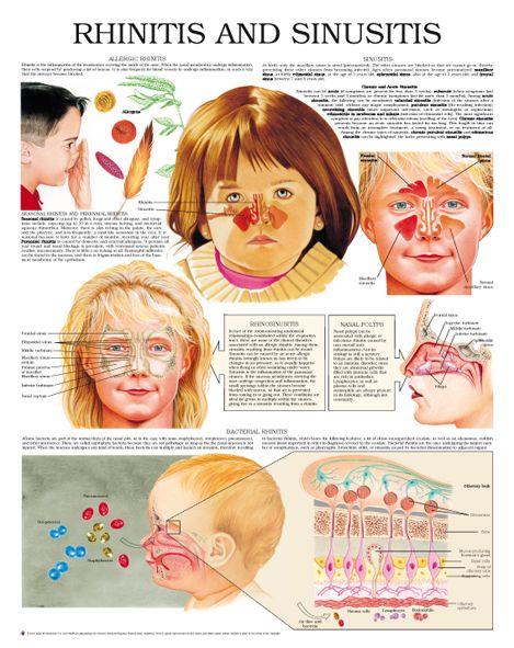 Rhinitis And Sinusitis Physiology Amp Theorical Amp Health