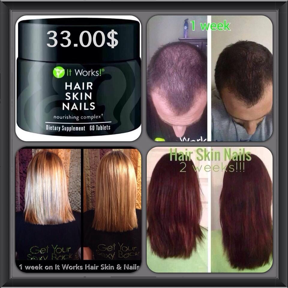 It works hair Skin and Nails Get wholesale as a loyal