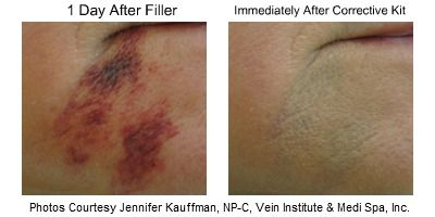 Reduce Bruising Facial Fillers