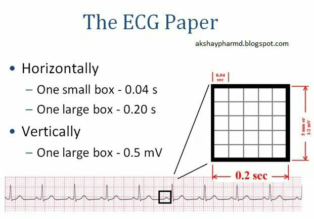 simple explanation of the ecg graph paper