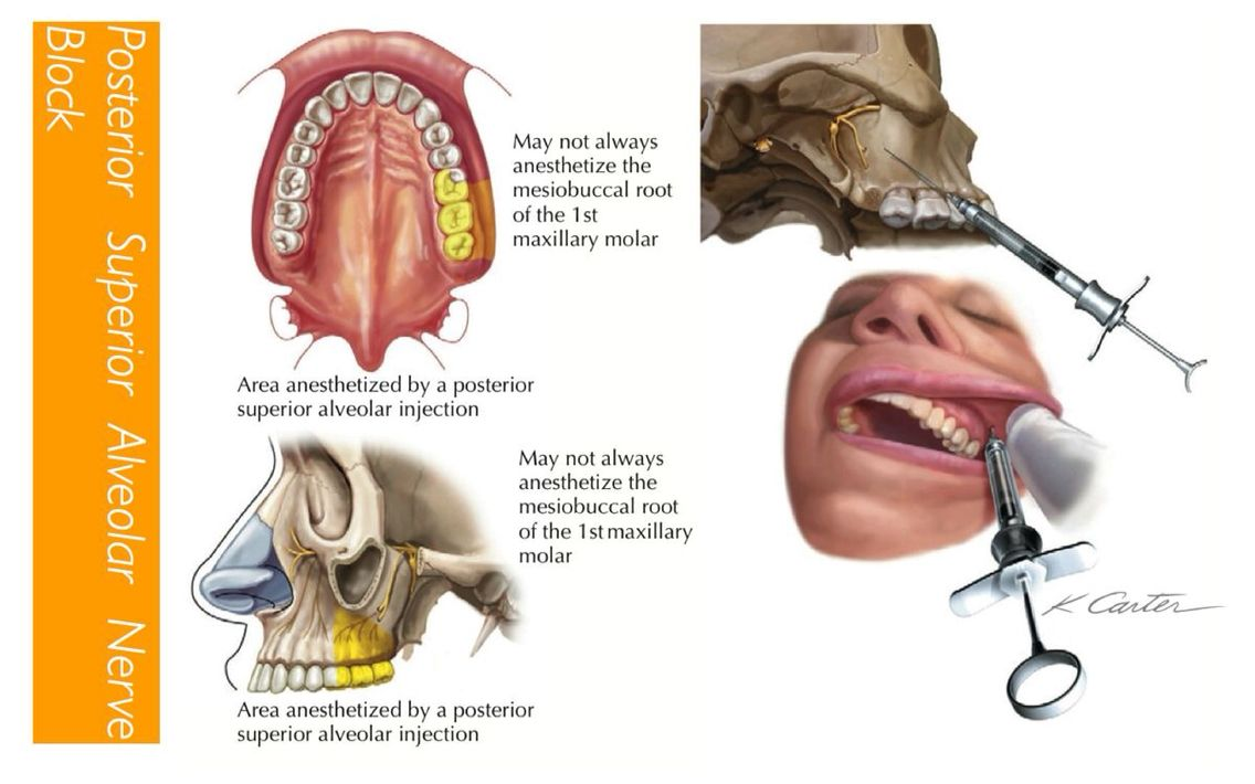 The posterior superior alveolar nerve block | Dental Anatomy ...