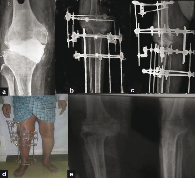 Salvage Of Infected Total Knee Arthroplasty With Ilizarov External