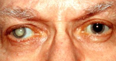 Obat Mata Katarak Di Apotik Kirim Barang Dulu Resep Dokter Kesehatan Mata