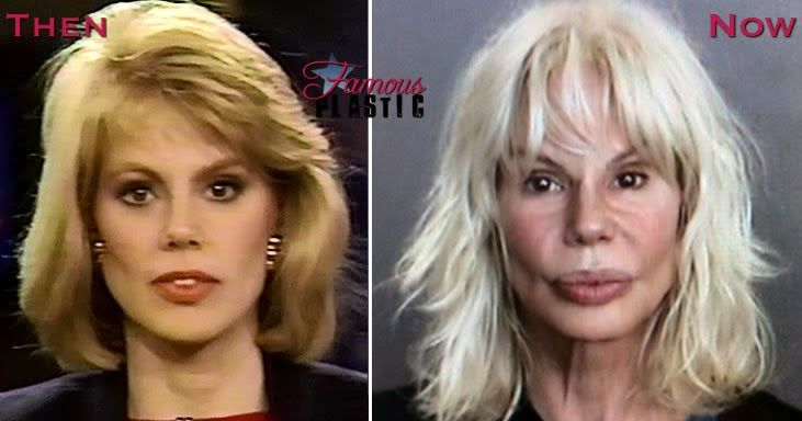 100% high quality dirt cheap another chance Bree Walker Plastic Surgery Gone Wrong Before and After ...