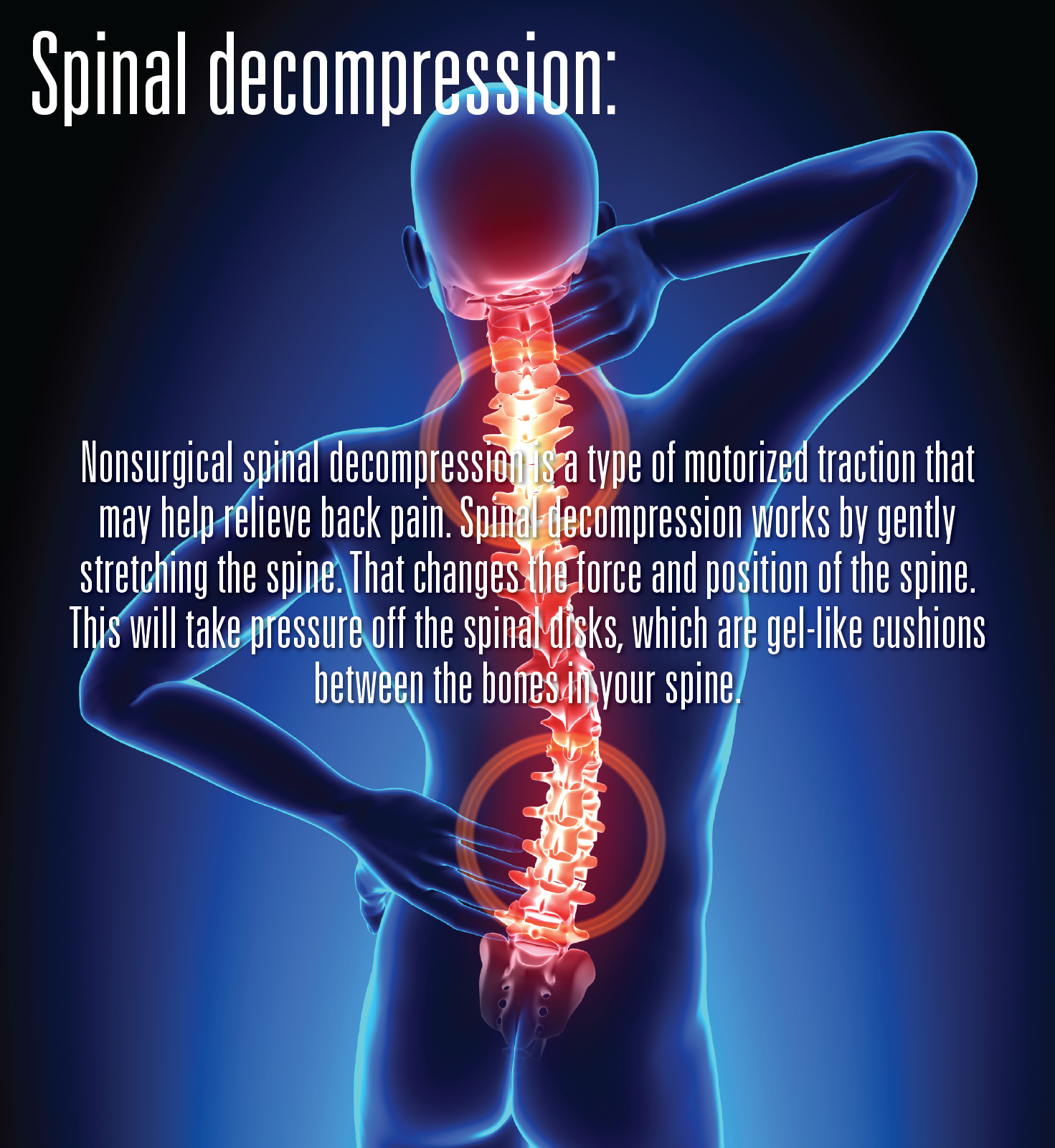 What is spinal (With images) Spinal