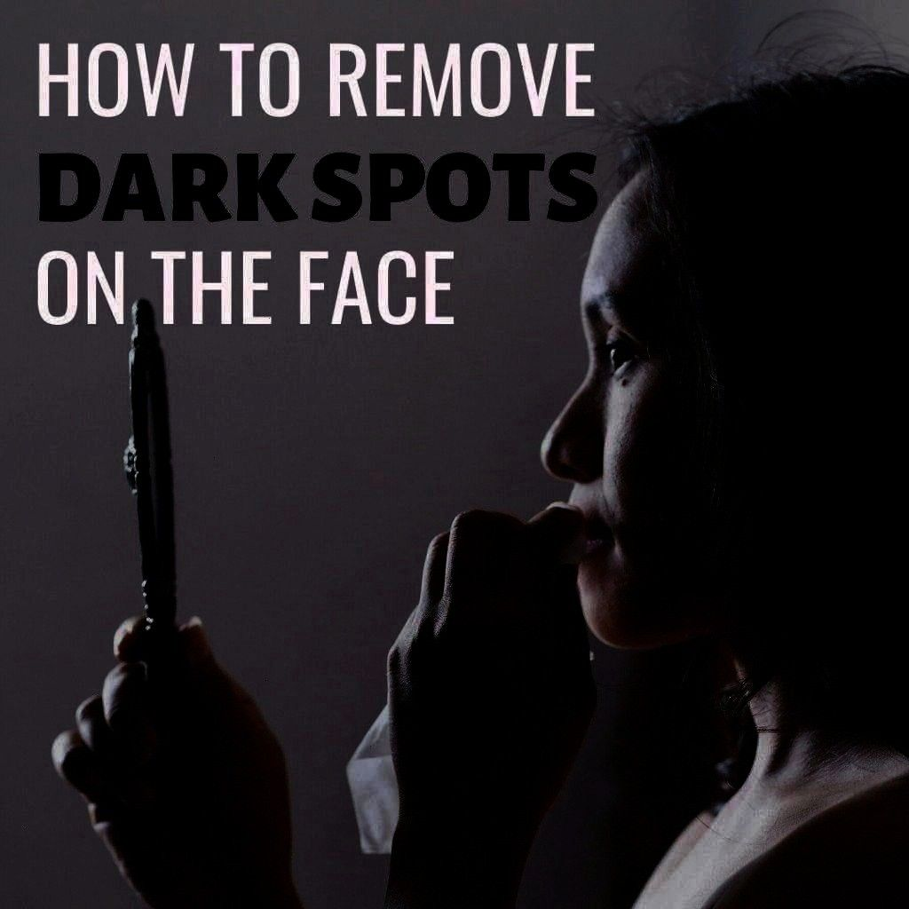 on their face forehead and cheeks Read on to find out some fantastic ways to prevent and get rid of these unsightly blemishes on your skinMany adults suffer from dark pat...