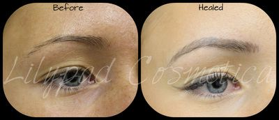 Photo of Lilypad Cosmetica Permanent Eyebrows – Before and After