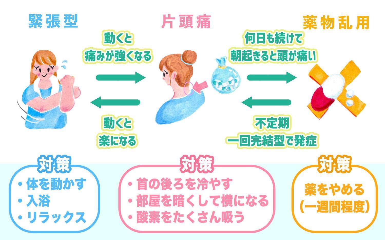 Https Www E Aidem Com Ch Jimocoro Entry Sakaguchi04 緊張型頭痛 健康と美容 対処