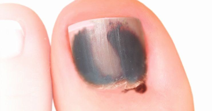 Black Line Under Nail Awesome What S With These Ridges In My Fingernails Healthprep In 2020 Black Lines Under Nails Best Nail Spa Nail Ridges