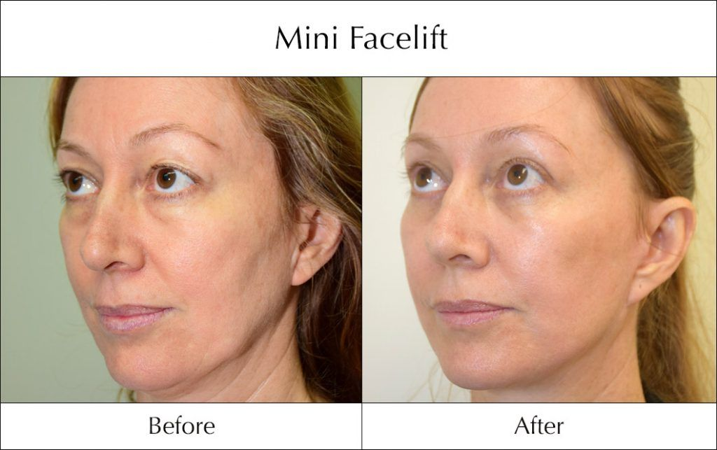 facelift #beauty However, you can have a surgery that has
