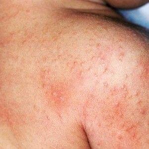 skin irritation treatment