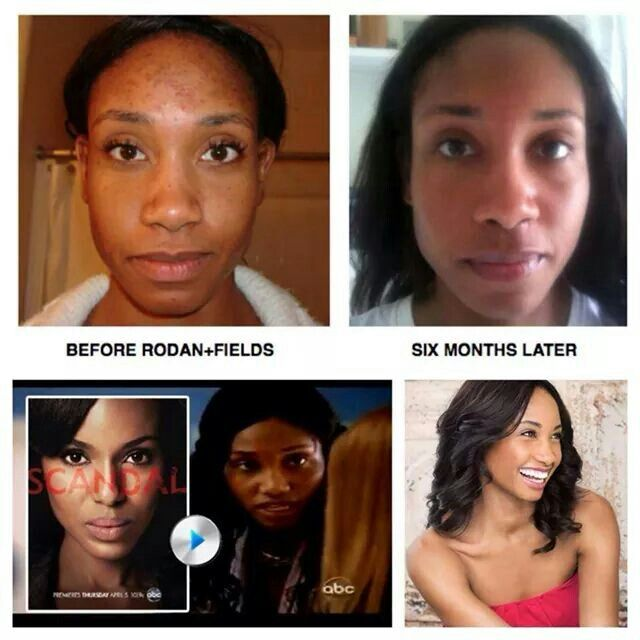 African American Skin Rodan And Fields Dermatologist Has You Covered Great Results Rodan And Fields American Skin Rodan And Fields Consultant