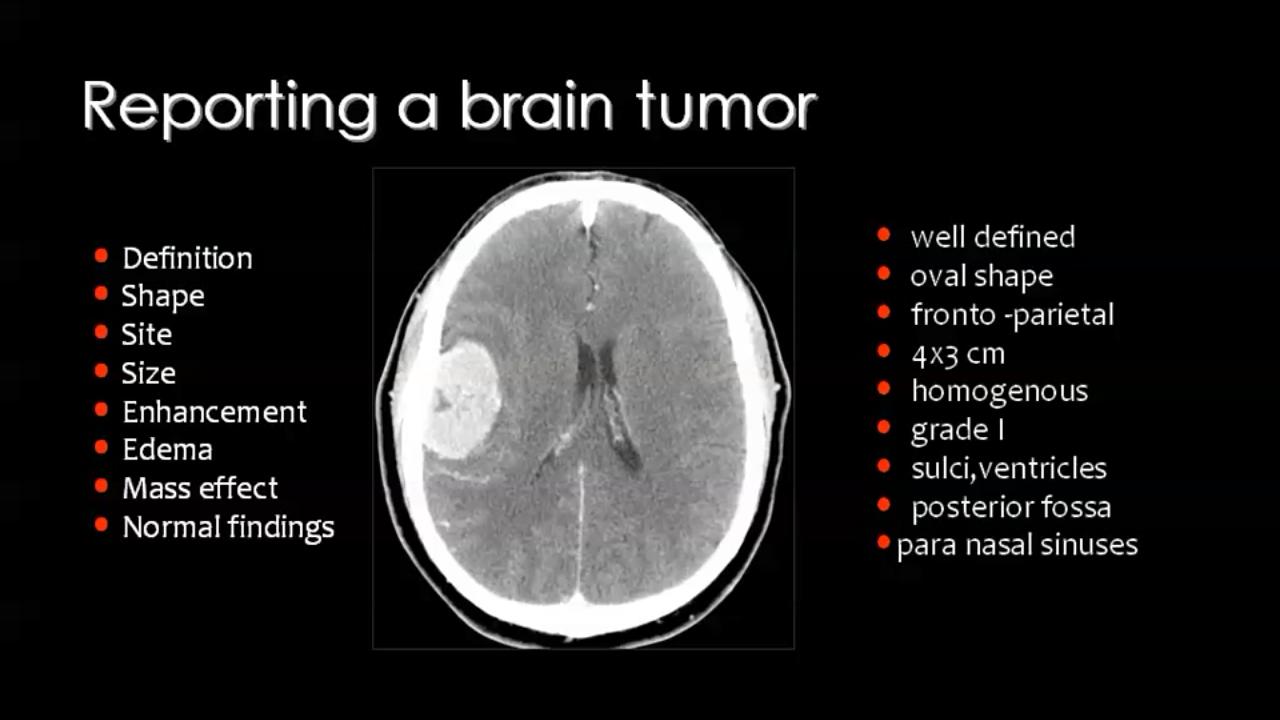 Pin By Dr Abuaiad On Idyt Mri Brain Brain Tumor Radiology Imaging