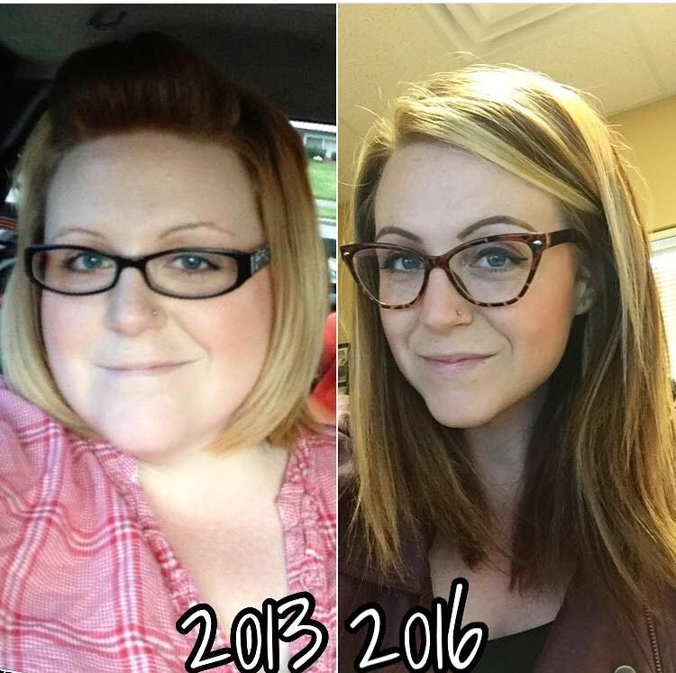Severe bloating and weight loss picture 10