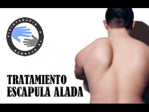 Tratamiento de Escapula Alada (Serrato Anterior) - Dolor..