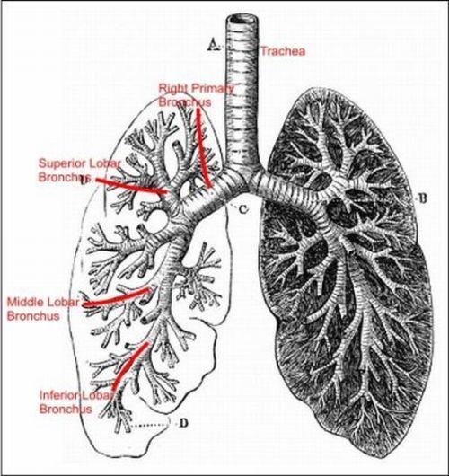 Httpomnimedicalsearchconditions diseasesimageslung httpomnimedicalsearchconditions diseasesimages lung cancercancer cellslungssketchbookssketch ccuart Images