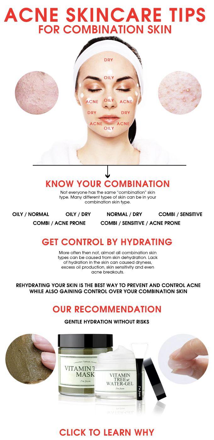 ACNE SKINCARE TIPS FOR COMBINATION SKIN Combination skin