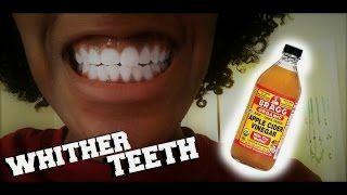 how to whiten teeth how to whiten teeth