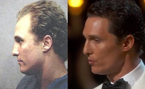 Before and After of Matthew McConaughey's Hair Transplantation