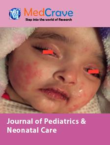 Refractory Kawasaki Disease: Unusual Presentation and  Mini Review