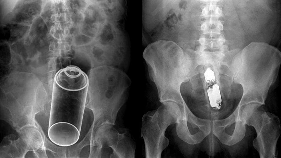 nozhki-v-zhope-rentgen-foto