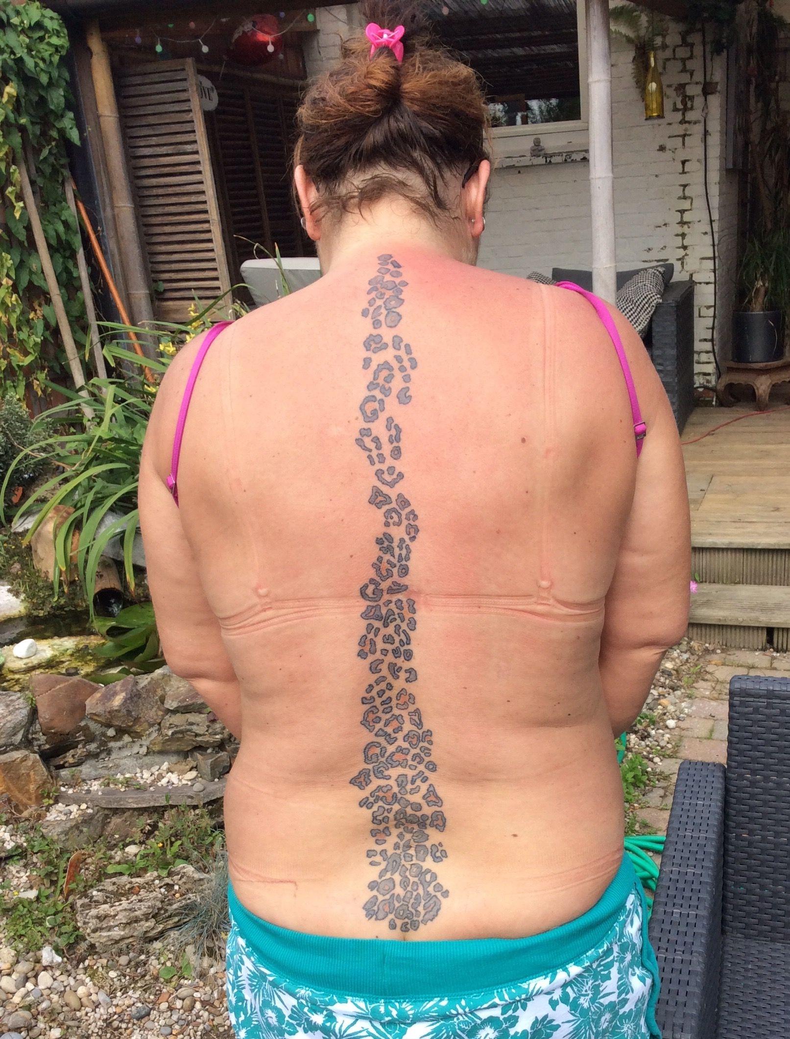 onderrug , lelijke litteken, 3 rug operatie | tattoo - tekenen