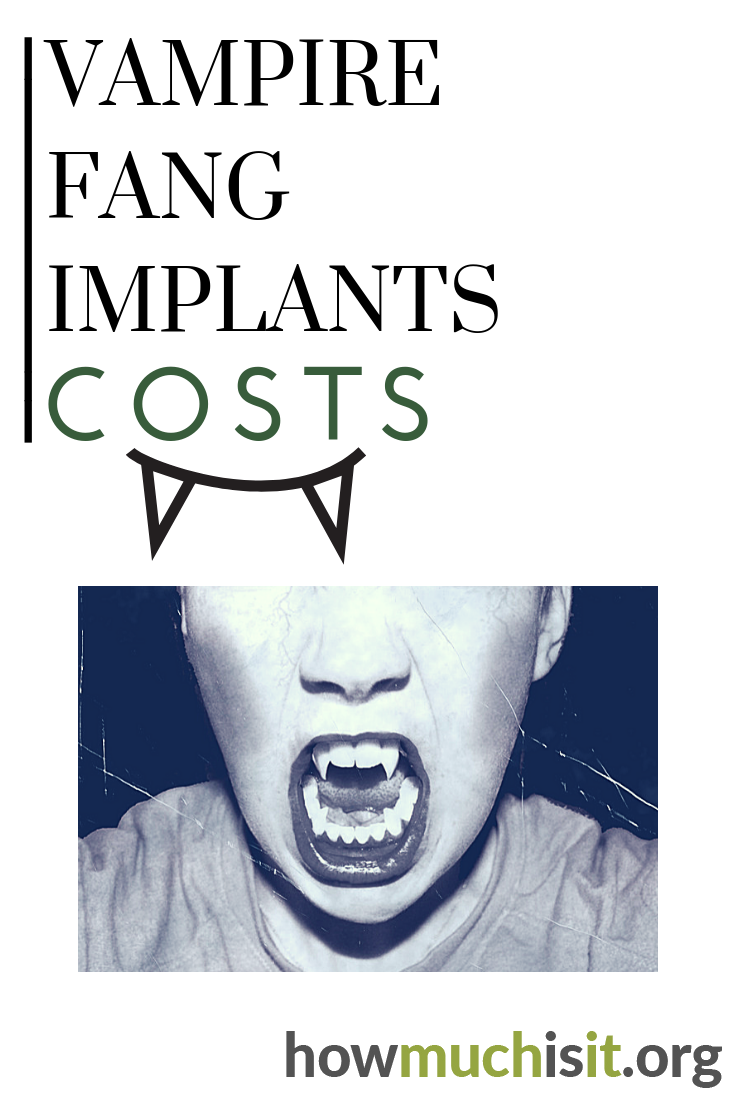 How much do vampire fang implants cost? Find out what others