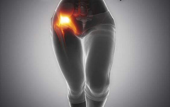 Image result for Fibromyalgia and Hip Flexor Pain