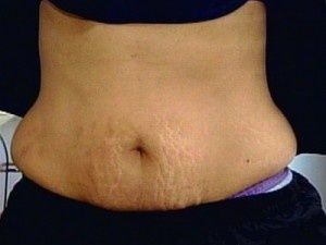 Several techniques used to eliminate stretch marks.