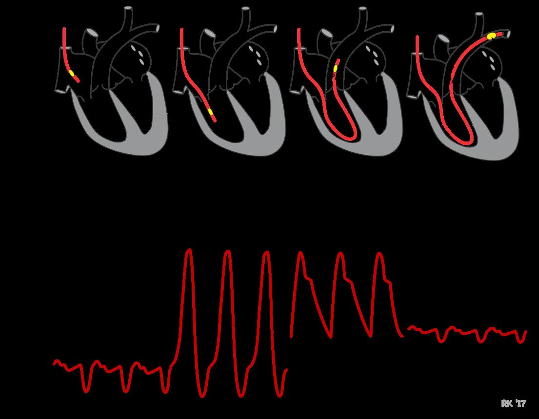 Eads Cardiac Ekg Worksheet